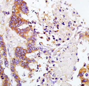 Immunohistochemistry (Formalin/PFA-fixed paraffin-embedded sections) - Anti-TIMP1 antibody (ab216432)