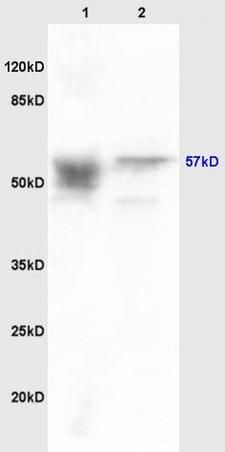 Western blot - Anti-Activin Receptor Type IIA antibody (ab216960)
