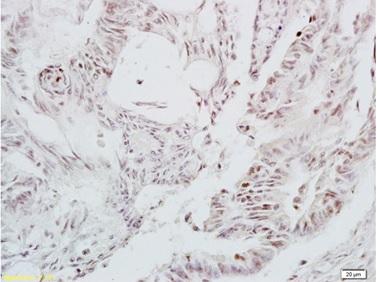 Immunohistochemistry (Formalin/PFA-fixed paraffin-embedded sections) - Anti-LEF1 antibody (ab217378)