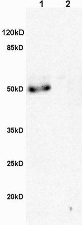 Western blot - Anti-Macrophage Scavenger Receptor I antibody (ab217843)