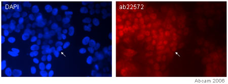 Immunocytochemistry/ Immunofluorescence - SOX1 antibody (ab22572)