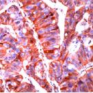 Immunohistochemistry (Formalin/PFA-fixed paraffin-embedded sections) - Anti-E Cadherin antibody [SPM471] (ab22585)