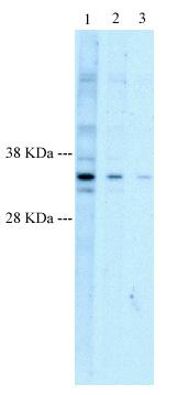 Western blot - HEY1 antibody (ab22614)