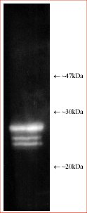 Western blot - Proteasome 20S alpha + beta antibody (ab22673)