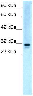 Western blot - Anti-EAP30 antibody (ab22768)