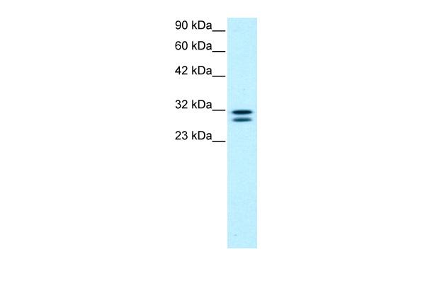 Western blot - Anti-TIP30 antibody (ab22841)