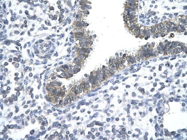 Immunohistochemistry (Formalin/PFA-fixed paraffin-embedded sections) - Anti-Nocturnin antibody (ab22850)