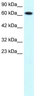 Western blot - Anti-PIAS3 antibody (ab22856)