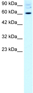 Western blot - Anti-FOXJ2 antibody (ab22857)