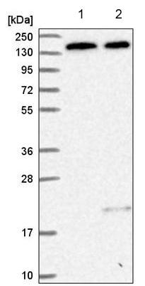 Western blot - Anti-DHX38 antibody (ab220265)