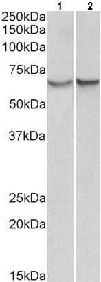 Western blot - Anti-alpha 1 Antichymotrypsin antibody (ab223226)