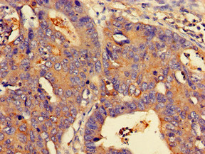 Immunohistochemistry (Formalin/PFA-fixed paraffin-embedded sections) - Anti-N myc interactor antibody (ab224675)