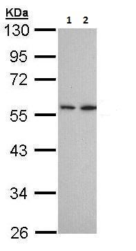 Western blot - Anti-DPP2 antibody (ab226935)