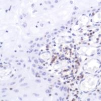 Immunohistochemistry (Formalin/PFA-fixed paraffin-embedded sections) - Anti-CD2 antibody [SP304], prediluted (ab228316)