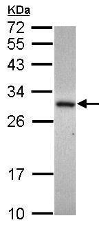 Western blot - Anti-ADHFE1 antibody (ab229146)