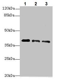 Western blot - Anti-RP2 antibody (ab229649)