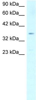 Western blot - Anti-SCD1 antibody (ab23331)