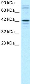 Western blot - Anti-SOX18 antibody (ab23342)