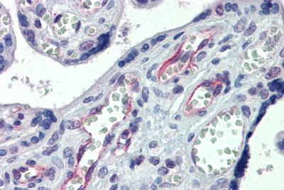 Immunohistochemistry (Formalin/PFA-fixed paraffin-embedded sections) - Anti-Claudin 23 antibody (ab23355)