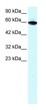 Western blot - Anti-ThPok antibody (ab23388)
