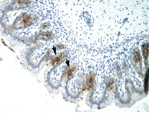 Immunohistochemistry (Formalin/PFA-fixed paraffin-embedded sections) - Anti-ETV6 / Tel antibody (ab23465)
