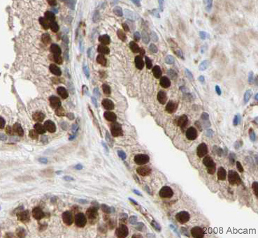 Immunohistochemistry (Formalin/PFA-fixed paraffin-embedded sections) - Anti-FOXA1 antibody - ChIP Grade (ab23738)