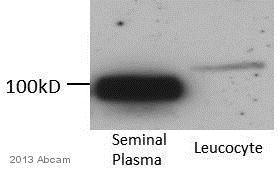 Western blot - Anti-CD13 antibody [CVS19] (ab23758)