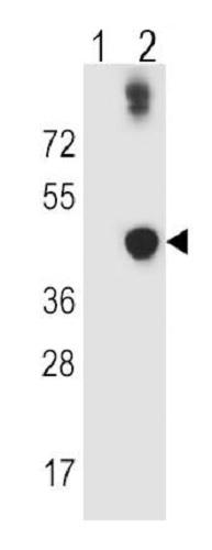 Western blot - Anti-ADH5 antibody (ab230871)