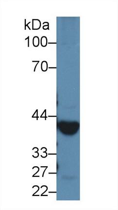 Western blot - Anti-Alcohol Dehydrogenase antibody (ab231521)