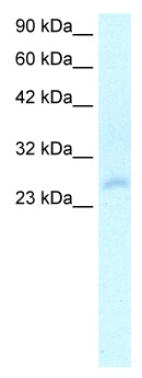 Western blot - Anti-HOXC4 antibody (ab24338)