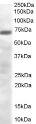 Western blot - Anti-PRDM4/PFM1 antibody (ab24365)