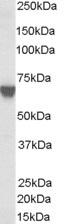 Western blot - Anti-TOM1L2 antibody (ab24369)