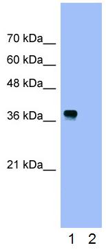 Western blot - Anti-Nucleophosmin antibody (ab24412)