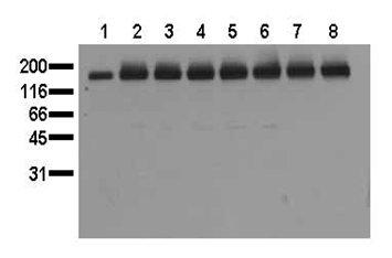 Western blot - Anti-EGFR (phospho Y1045) antibody [11C2] (ab24928)