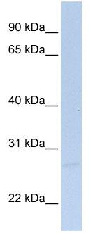 Western blot - Anti-SIGIRR antibody (ab25875)
