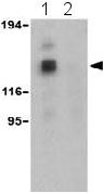 Western blot - Anti-Hamartin antibody (ab25882)