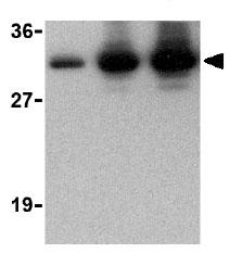 Western blot - Anti-CTRP2 antibody (ab25943)
