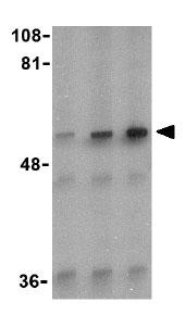 Western blot - Anti-IRAK2 antibody (ab25957)