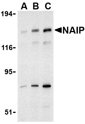 Western blot - Anti-NAIP antibody (ab25968)