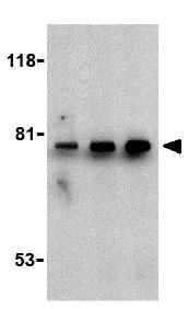 Western blot - Anti-BTK antibody (ab25971)
