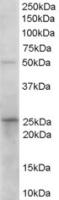 Western blot - Anti-Prostaglandin dehydrogenase 1 antibody (ab26076)