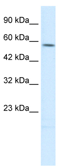 Western blot - Anti-TPH2 antibody (ab26092)