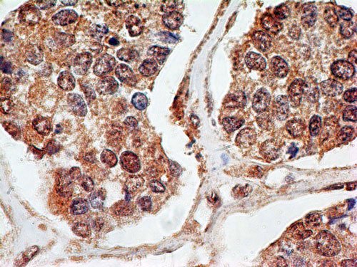 Immunohistochemistry (Formalin/PFA-fixed paraffin-embedded sections) - Anti-p73 antibody [5B429] (ab26123)