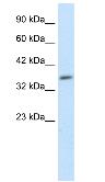 Western blot - Anti-Hey L antibody (ab26138)