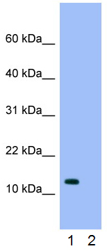 Western blot - Anti-RPS16 antibody (ab26159)