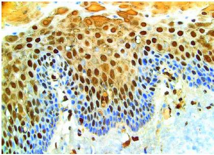 Immunohistochemistry - Anti-8 Hydroxyguanosine antibody [7D7E4] (ab26842)