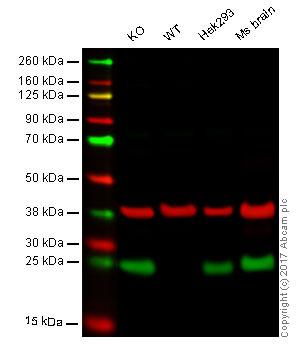 Western blot - Anti-PGP9.5 antibody (ab27053)