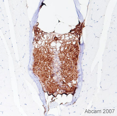 Immunohistochemistry (Formalin/PFA-fixed paraffin-embedded sections) - Anti-NRG1 type I antibody (ab27303)