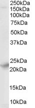 Western blot - Anti-Synaptogyrin 4 antibody (ab27480)