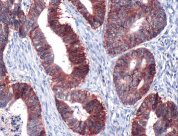 Immunohistochemistry (Formalin/PFA-fixed paraffin-embedded sections) - Anti-Claudin 7 antibody, prediluted (ab27488)